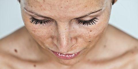 New Beauty Treatment For Sun Damaged Skin