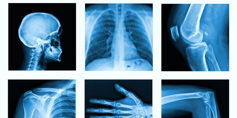 What To Eat For Stronger Bones