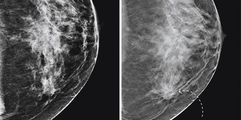 mammogram technology