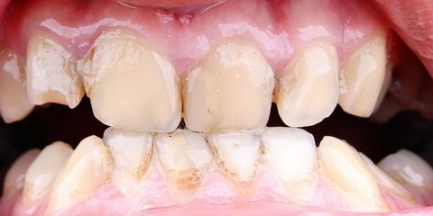 problem solved: gum disease