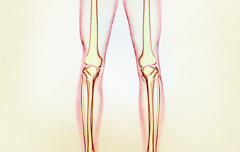 Is It Time For Joint Surgery? Here's How To Know | Prevention