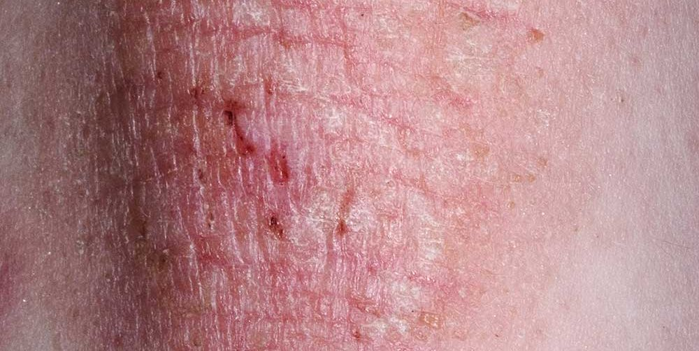 eczema and your health