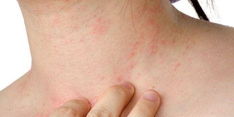 eczema natural remedies