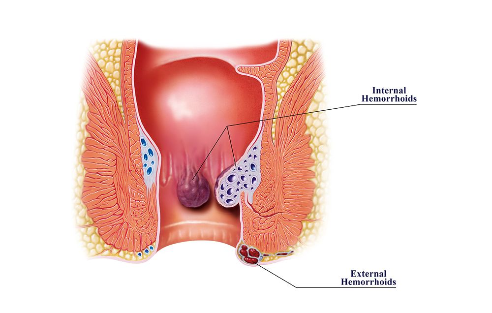 Pictures of female anus hemorrhoids