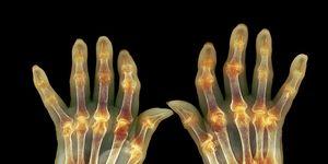 arthritis symptoms