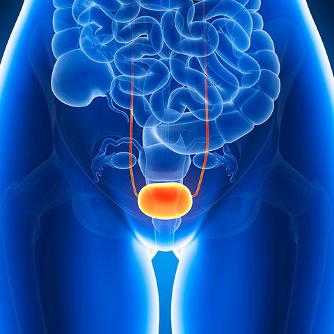 interstitial cystitis