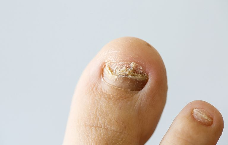 Natural Home Remedies For Nail Fungus | Prevention