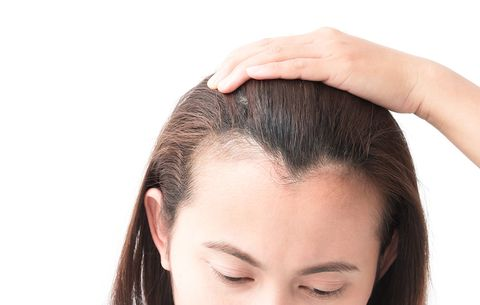 The Link Between Stress And Hair Loss | Prevention