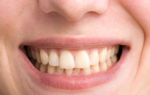 Yellow Teeth Avoid Making These Everyday Mistakes Prevention