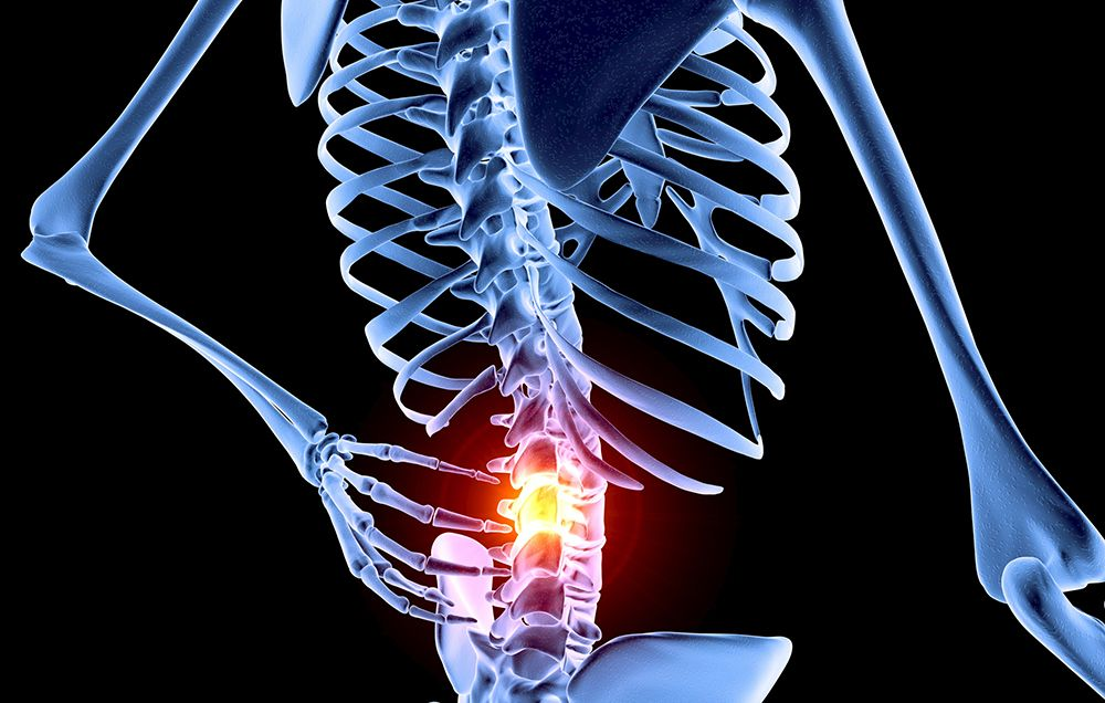 7 Things Your Back Pain Is Trying To Tell You
