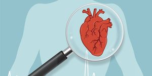 what to do after a heart attack