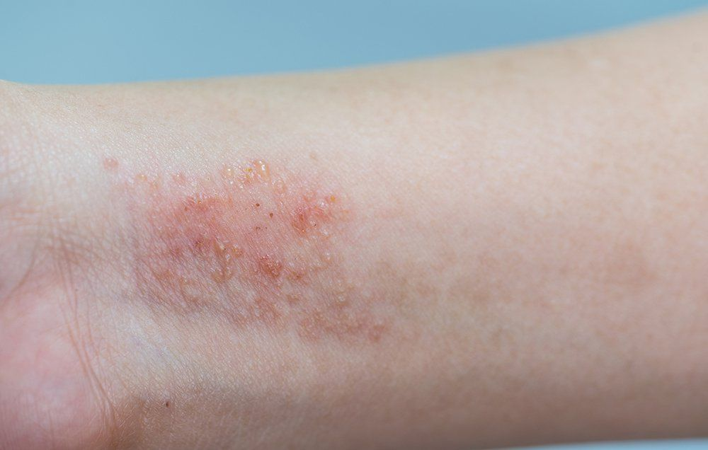 Ease Your Itchy Skin With These 8 Best Eczema Treatments