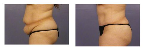 1d6e942793c 8 Things You Should Know About A Tummy Tuck—From Someone Who Got One ...