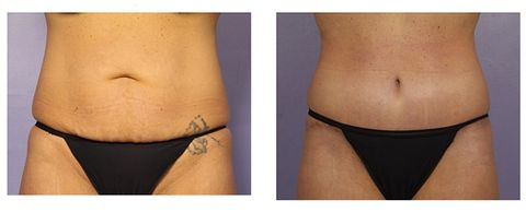 8 Things You Should Know About A Tummy Tuck From Someone Who Got
