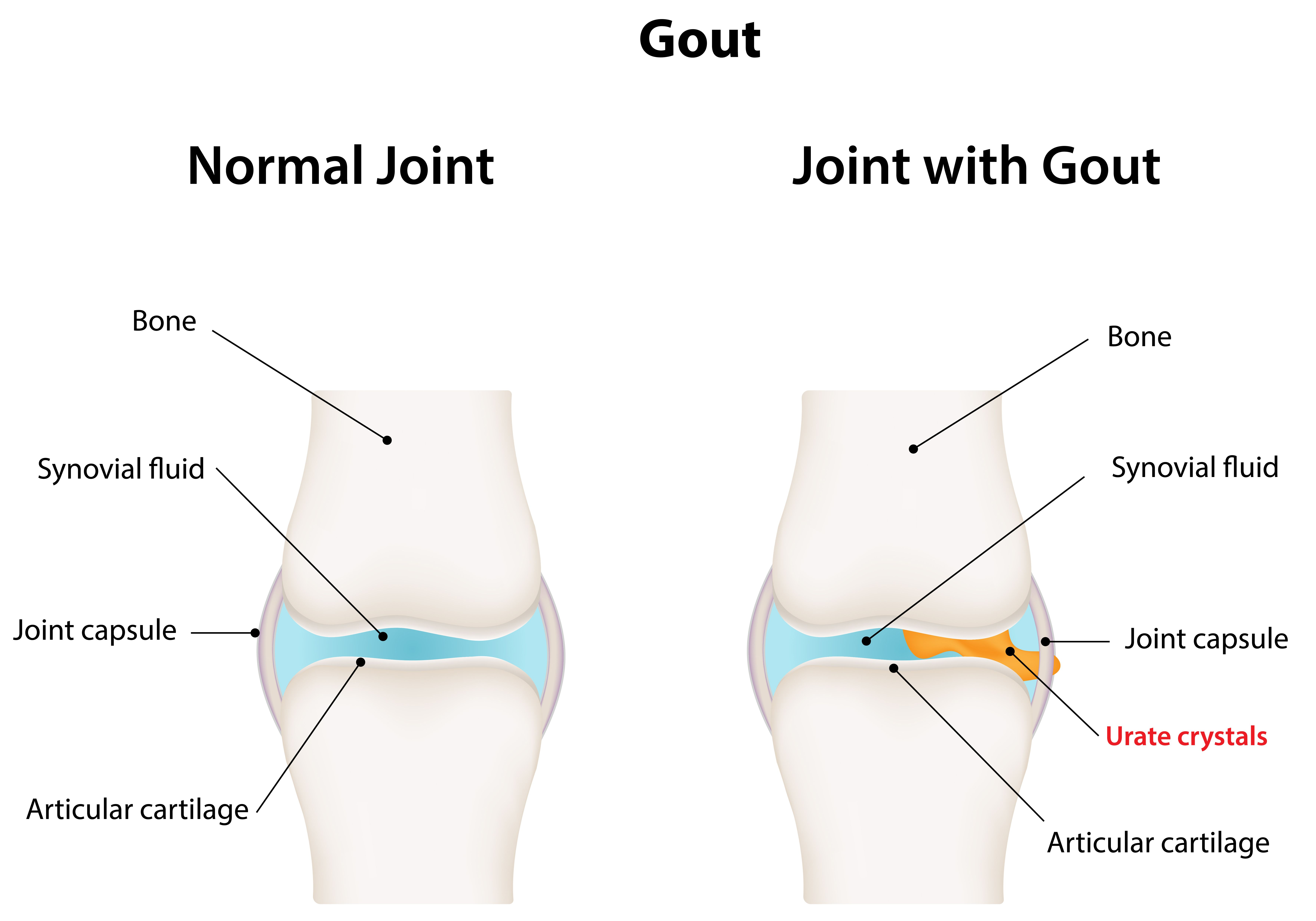 6 scary reasons your joints hurt preventiongout