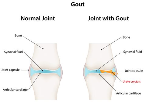 6 Scary Reasons Your Joints Hurt | Prevention