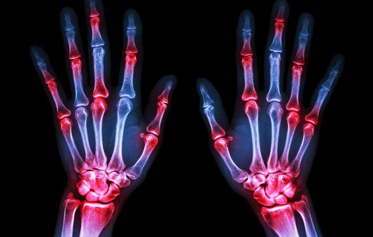 behandlung von kniegelenk arthrose bakerzyste.jpg