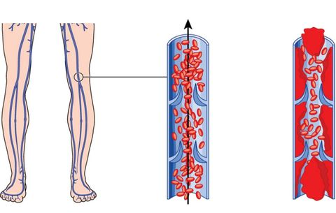 Deep vein thrombosis, blood clots, symptoms of a blood clot
