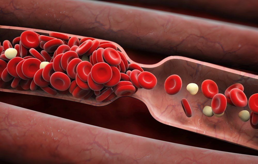 6 signs you might have a blood clot prevention
