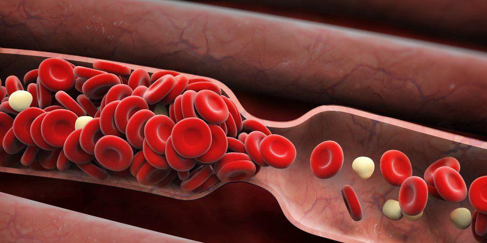 Blood clot, blood clots, symptoms of a blood clot
