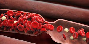 Blood clot, blood clots, symptoms of a blood clot