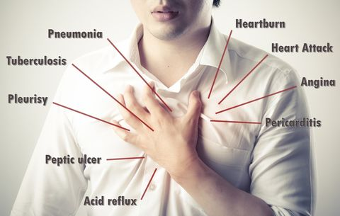 6 Weird Signs You Have Acid Reflux | Prevention