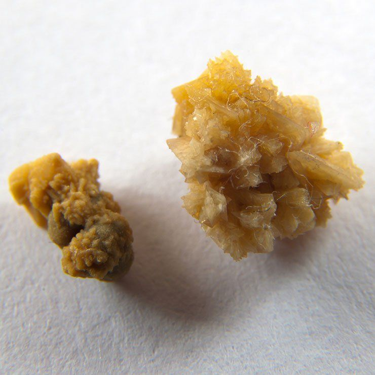 The Craziest Way To Pass A Kidney Stone—Plus 7 More Things You Didnt Know About Kidney Stones