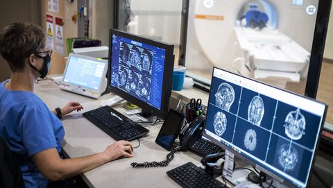 aviv also does before andafter brain scans thatreveal how the brain is aging and responding to the hbot treatment