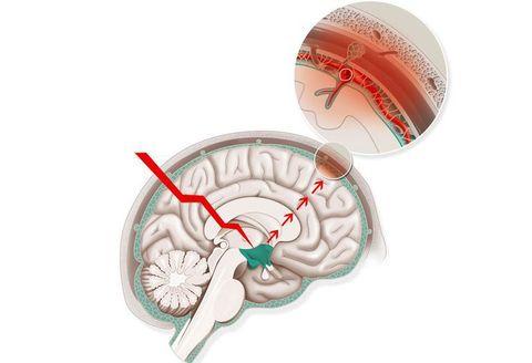 片頭痛 予防 サプリメント