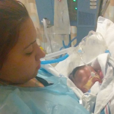 Houston baby born without skin makes recovery