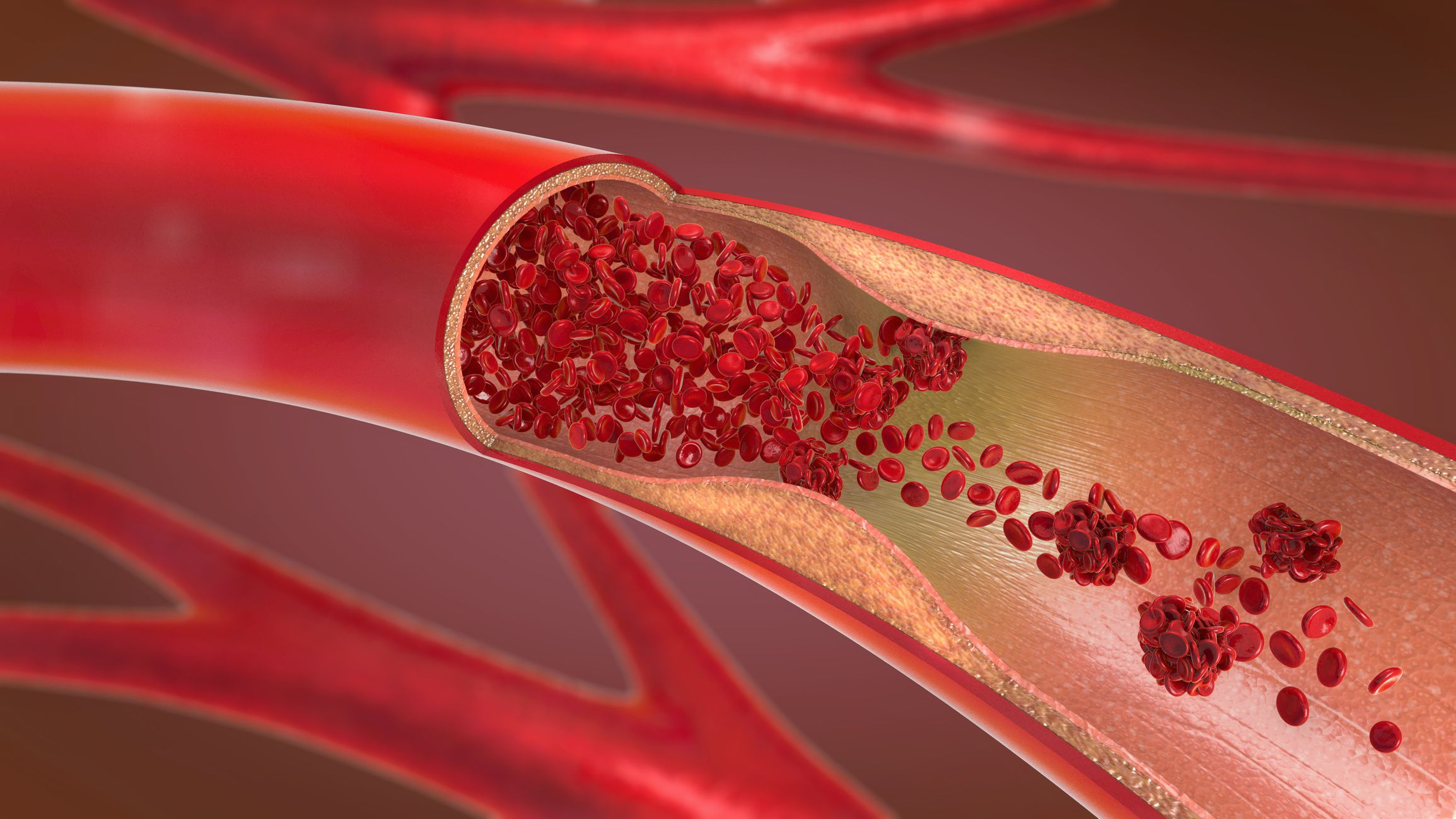 8 Signs Of A Blood Clot Symptoms In Legs Chest Neck And More