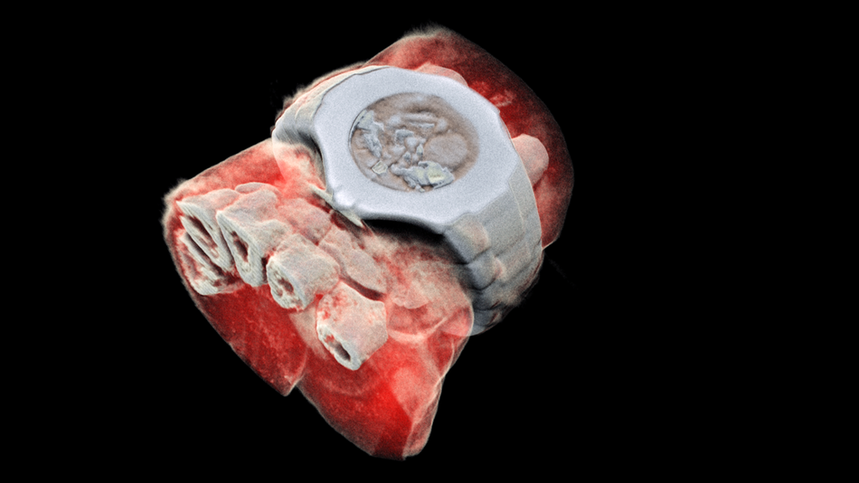 See Bones, Blood and Tissue in World's First 3D Colored X-Ray