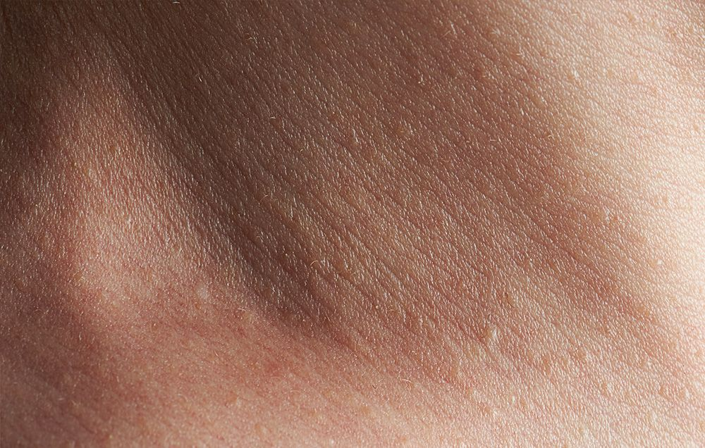 Minor Skin Problems That Could Signal Serious Conditions Men S Health