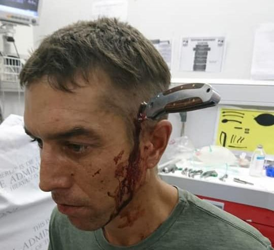 Cyclist Stabbed, Rides to Doctor With Knife in His Head