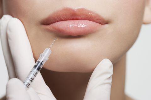 acido hialuronico labios