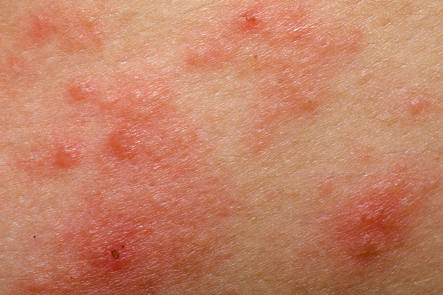 Anal itch and rash