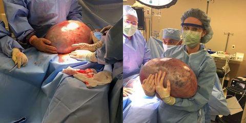 massive ovarian cyst