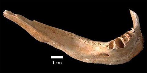 hiroshima jawbone