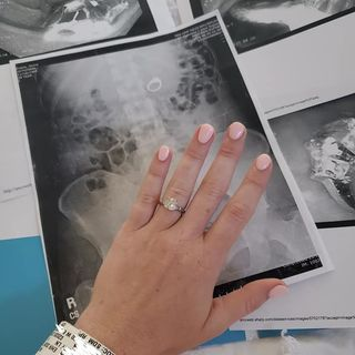 A 29-Year-Old Swallowed Her Engagement Ring While Dreaming About a Robbery