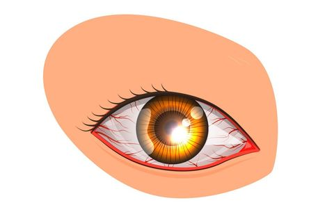 10 Common Causes Of Red, Bloodshot Eyes | Men's Health