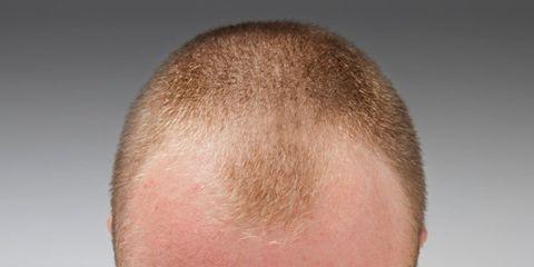prevent-balding.jpg