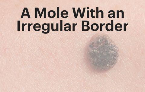 Signs Of Melanoma| Men's Health