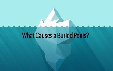 Penis around Dry skin