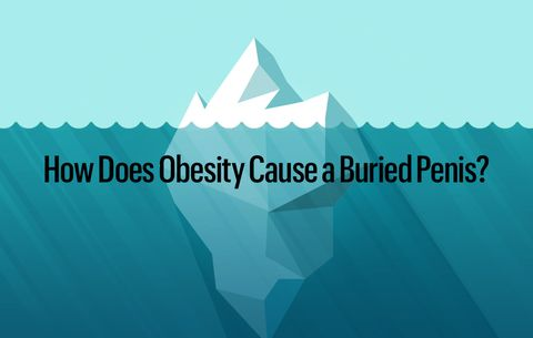 How Does Obesity Cause a Buried Penis?