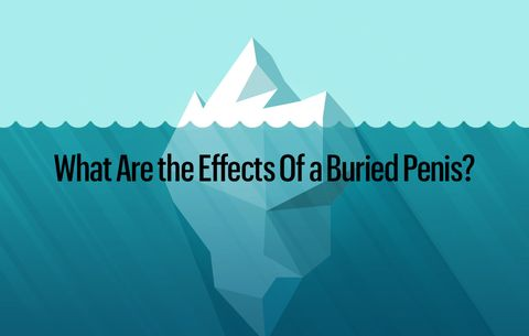What Are the Effects Of a Buried Penis?