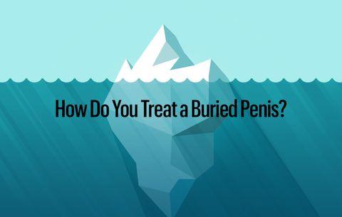How Do You Treat a Buried Penis?