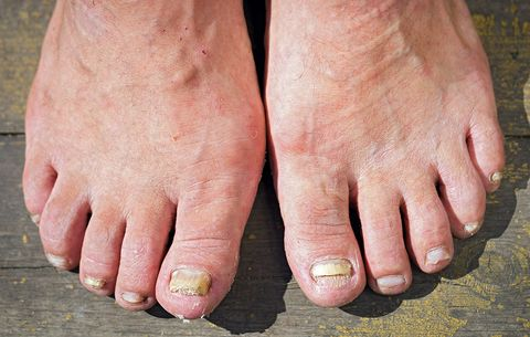 4 Gross Things That Can Happen When You Go Barefoot