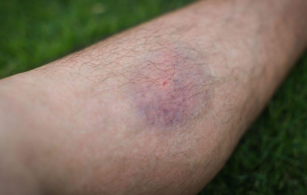 blood clots on skin