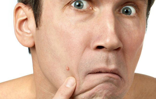 How to Treat Adult Acne | Men's Health