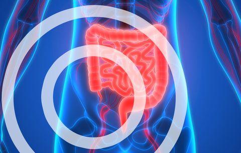 appendix burst nausea